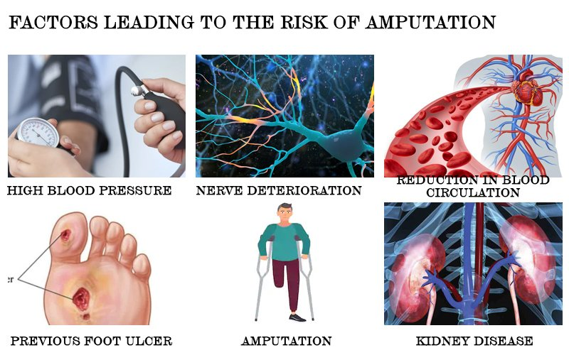 Factors leading to the risk of amputation
