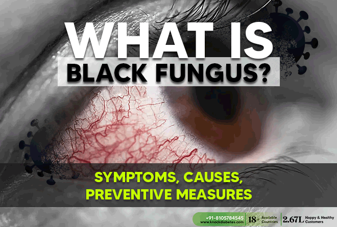 Early Detection and Prevention of Black Fungus in Diabetics